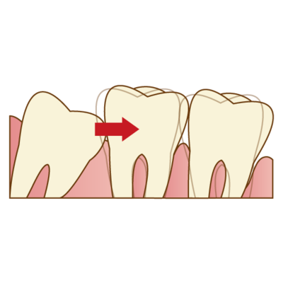 親知らずが歯並びに影響