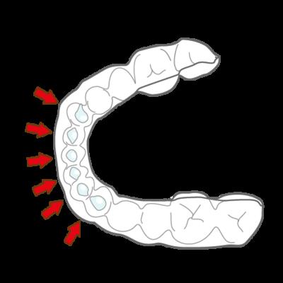 ホワイトニングマウスピース