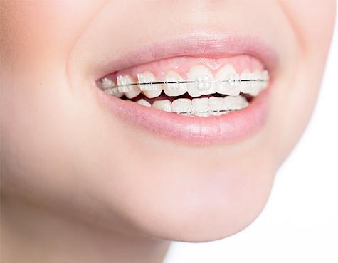 予防矯正・矯正歯科